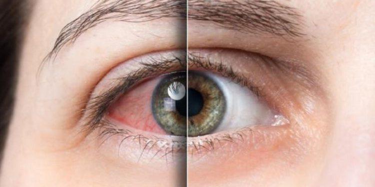 conjunctivitis eye allergy
