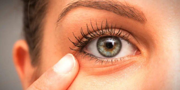 PRP under eye rejuvenation